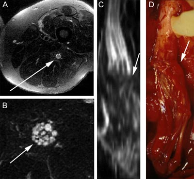 neurography-first-mrn-images