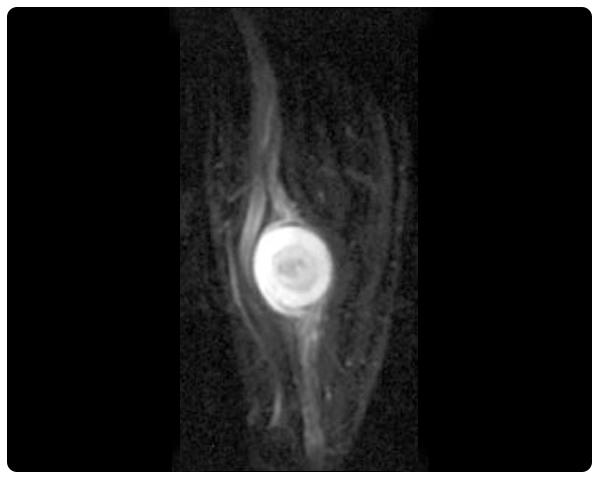 neurography-nerve-tumors